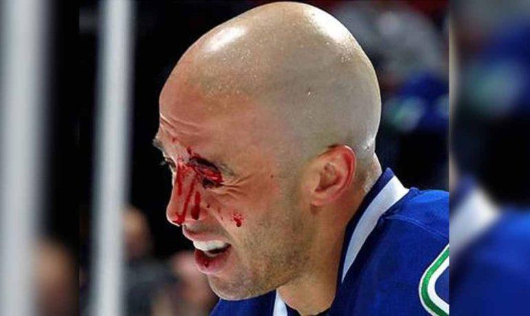 Σπόρ και οφθαλμικοί τραυματισμοί