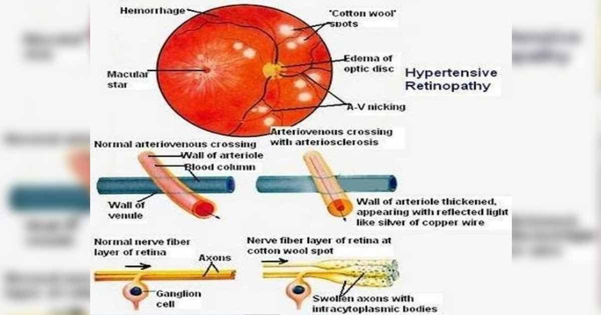 Πως η αρτηριακή πίεση επηρεάζει τα μάτια