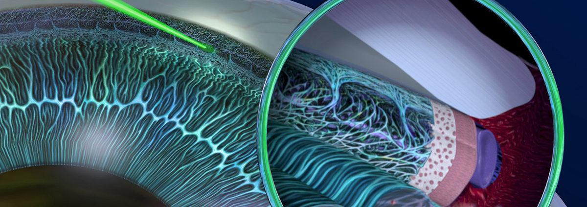 SLT - η ήπια εναλλακτική laser λύση για τη θεραπεία γλαυκώματος