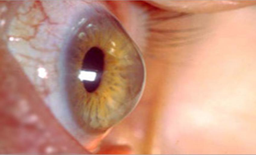 Κερατόκωνος: Μια πάθηση που αντιμετωπίζεται πολύ αποτελεσματικά με τις καινούργιες θεραπείες